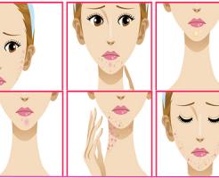 顎ニキビの原因